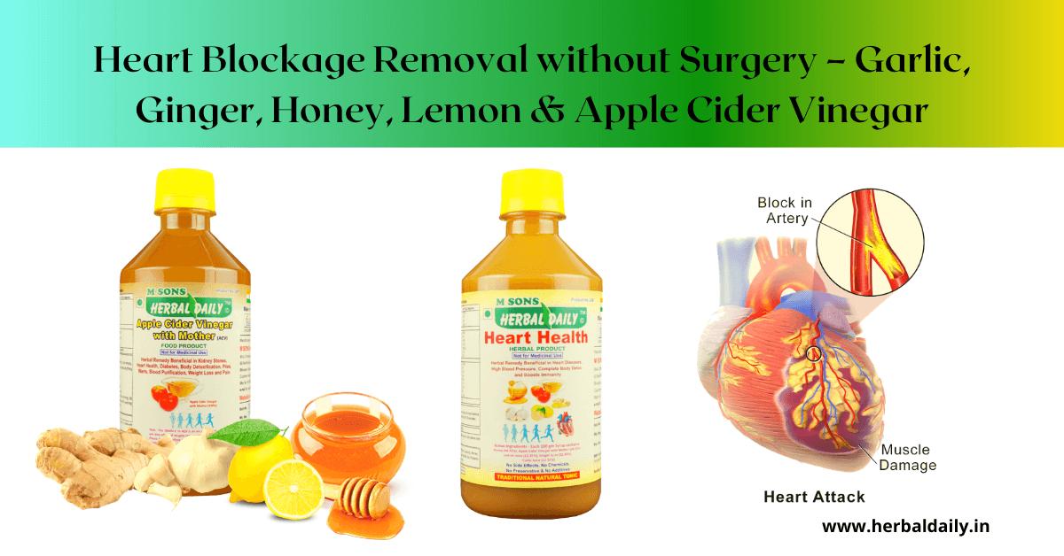 NATURAL HEART DISEASE TREATMENT - Heart Blockage Removal without Surgery – Garlic, Ginger, Honey, Lemon & Apple Cider Vinegar